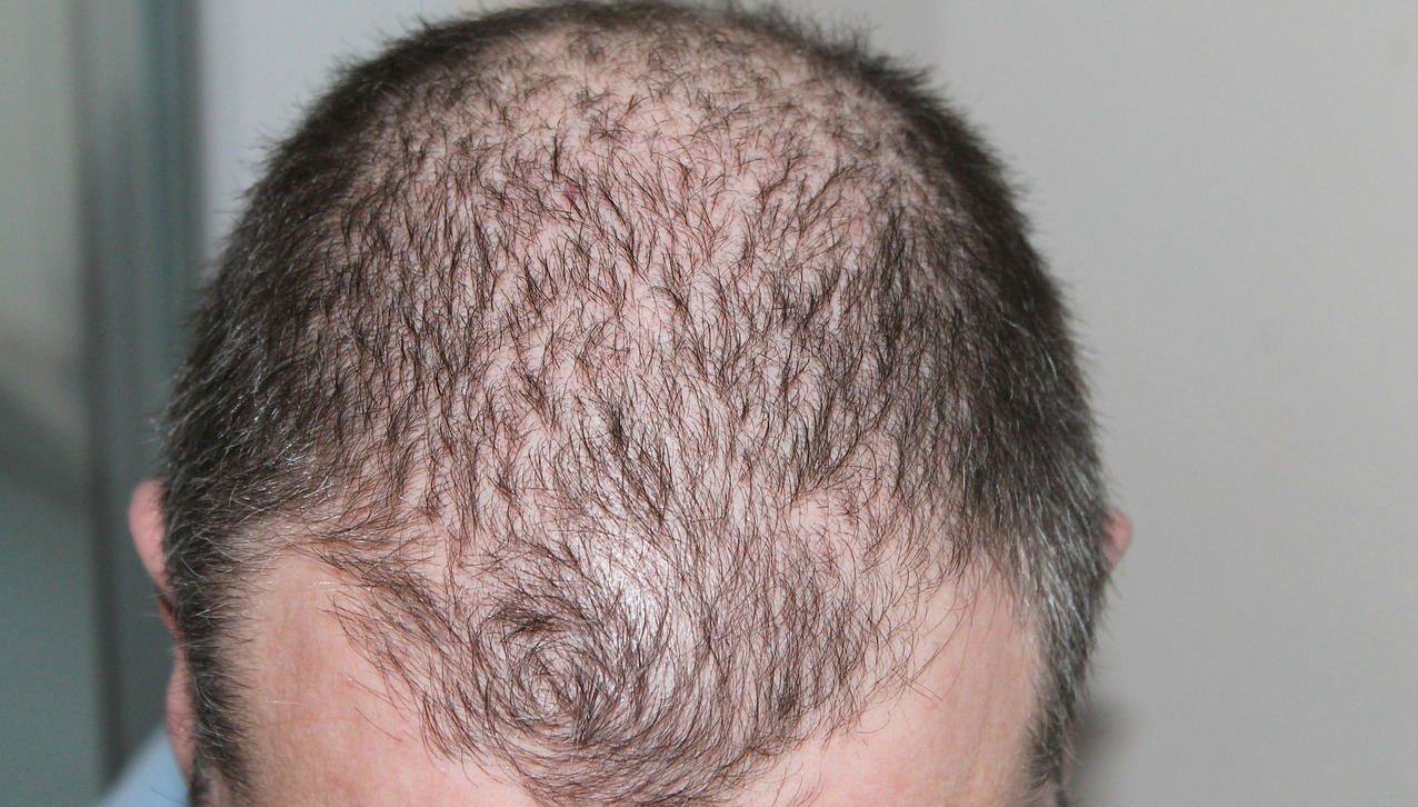 Thyroid Hair Loss Pattern Awesome Inspiration Ideas
